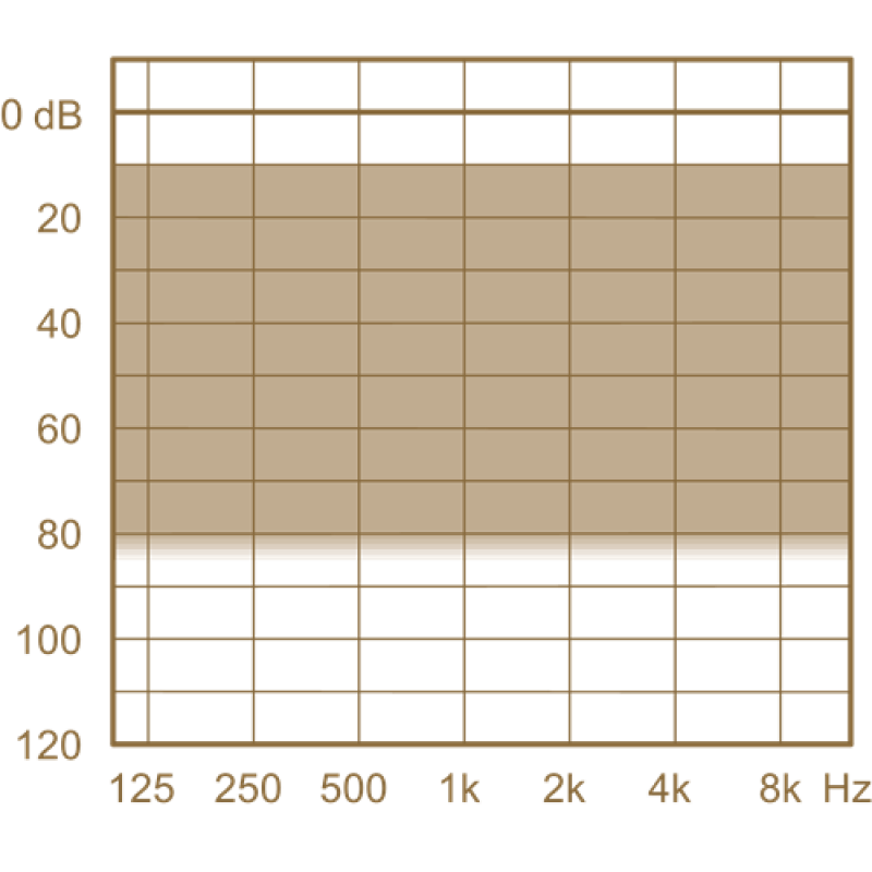 Слуховой аппарат Widex Unique U30-XP