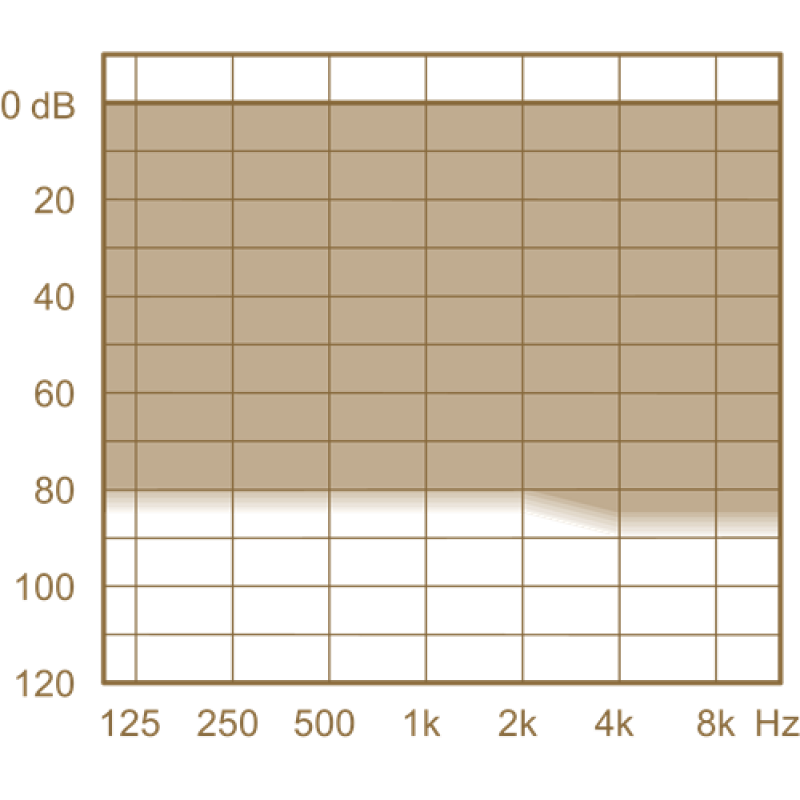 Слуховой аппарат Widex Unique U50-XP