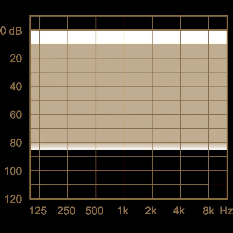Слуховой аппарат Widex Vital VL-XP