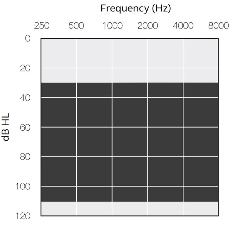 Слуховой аппарат ReSound Key KE388-DWH